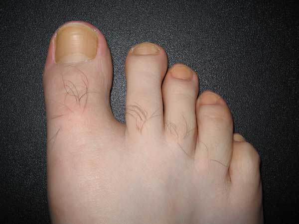 Why Are My Toenails Turning Yellow And Thick - Health Inputs